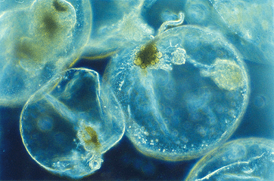 Noctiluca Scintillans Photo Credit Wikimedia Commons